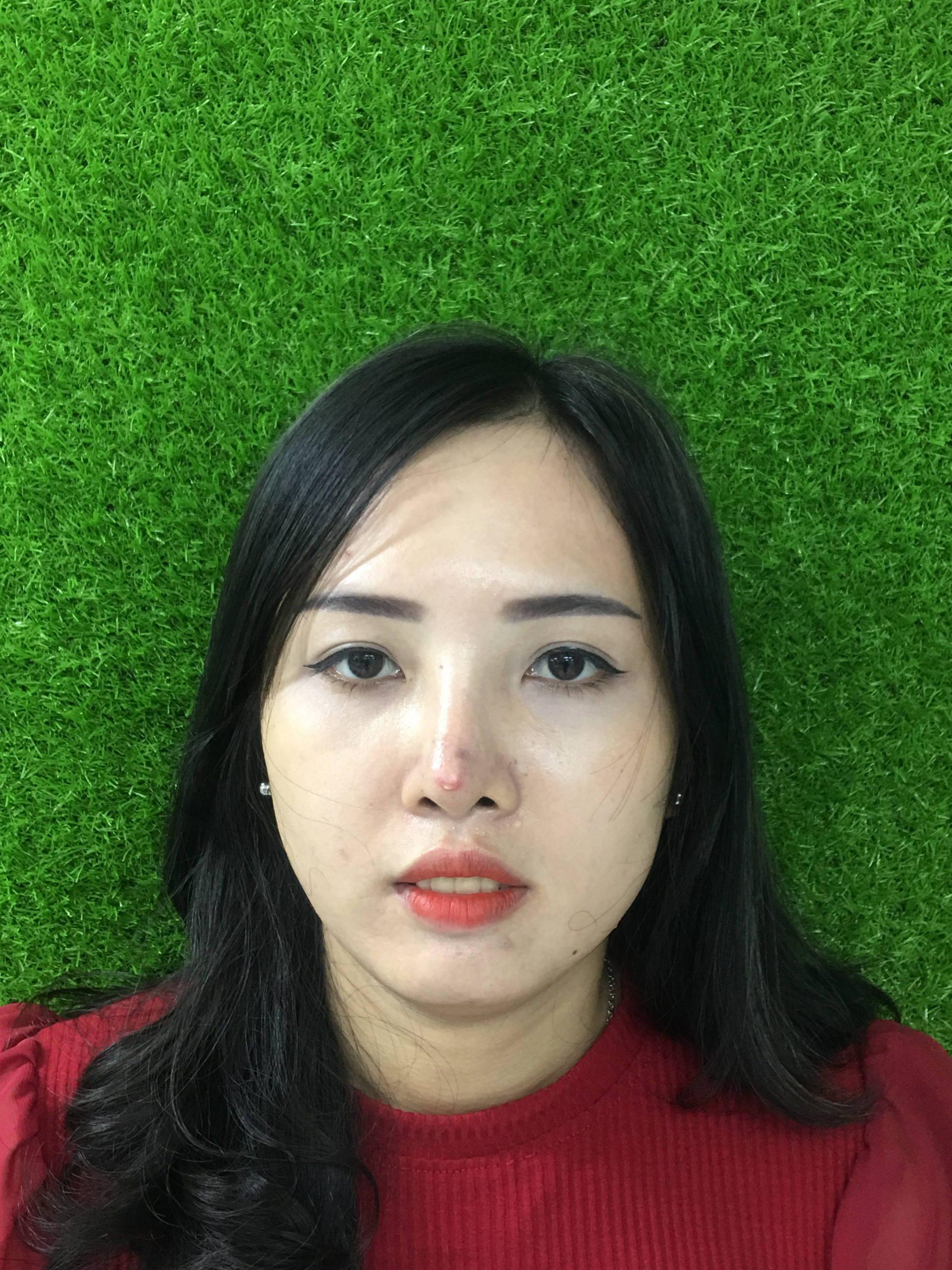 Dấu hiệu dị ứng chất liệu nâng mũi