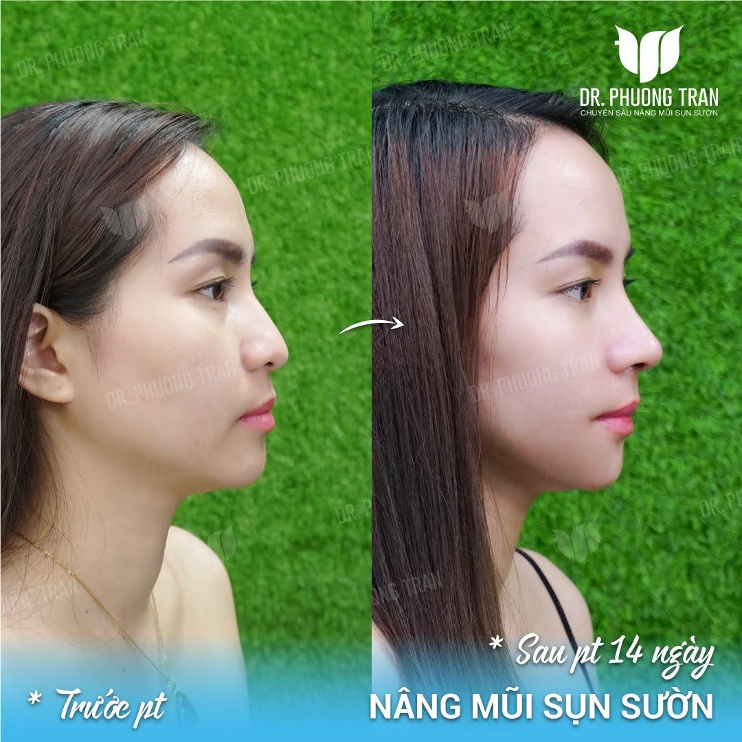 Nâng mũi cấu trúc tự thân thực hiện như thế nào?