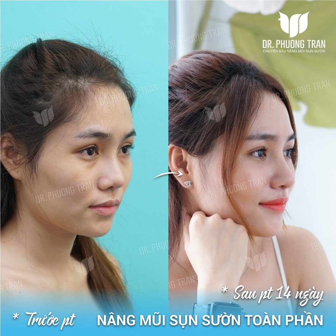 Nâng mũi sụn sườn toàn phần tại Dr Trần Phương