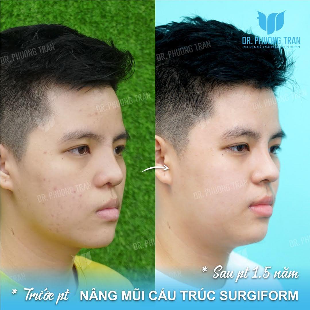 Phẫu thuật mũi nam có gì khác so với phẫu thuật mũi nữ