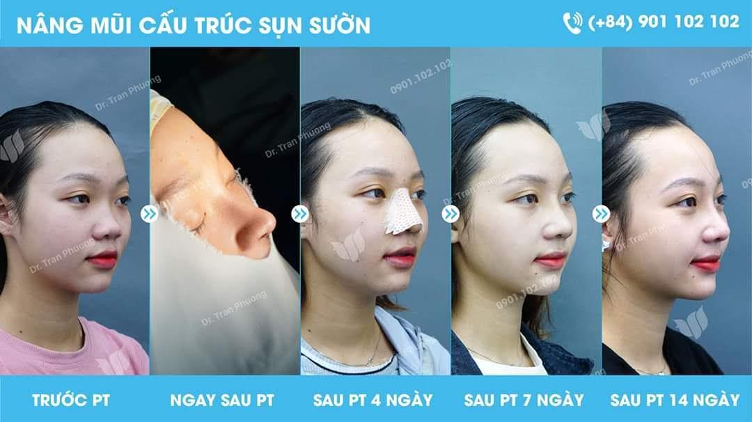 Ưu điểm của phương pháp nâng mũi sụn sườn toàn phần