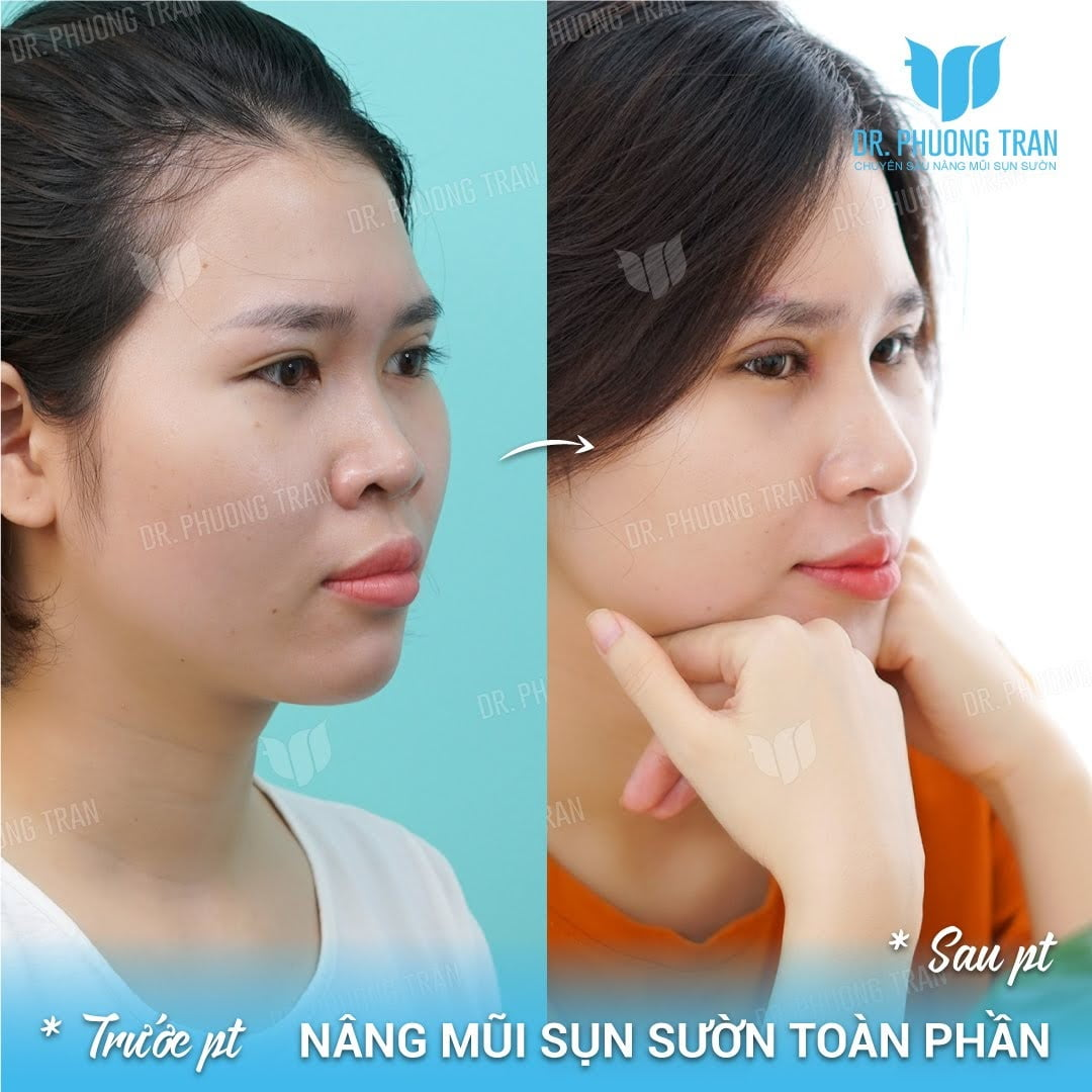 Hình ảnh trước và sau khi nâng mũi sụn sườn toàn phần