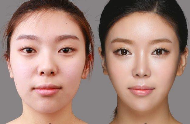 Khắc phục đầu mũi bị hếch bằng phương pháp nâng mũi cấu trúc có tốt và an toàn?
