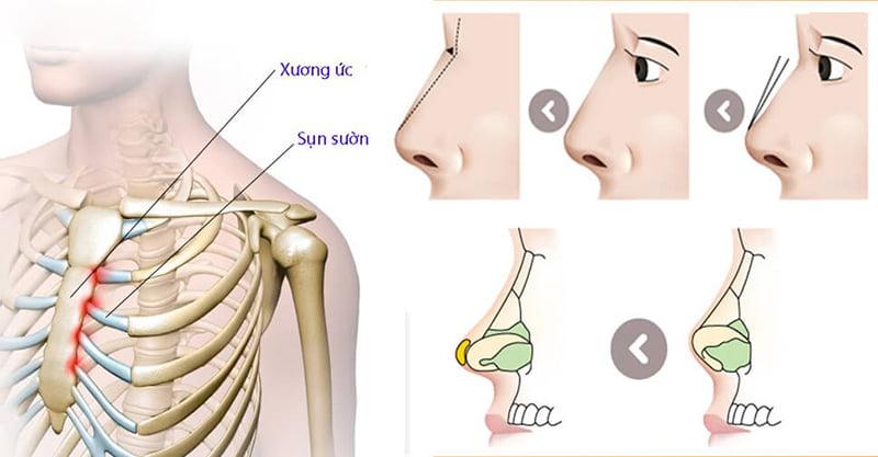 Nâng mũi sụn sườn toàn phần