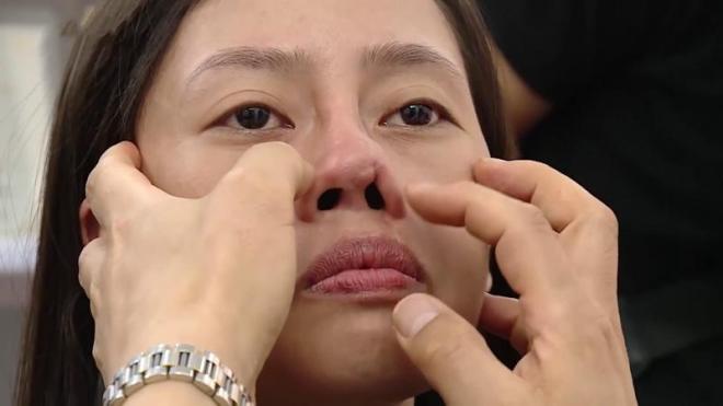 Những nguyên nhân và biến chứng phẫu thuật mũi hư mà bạn nên biết