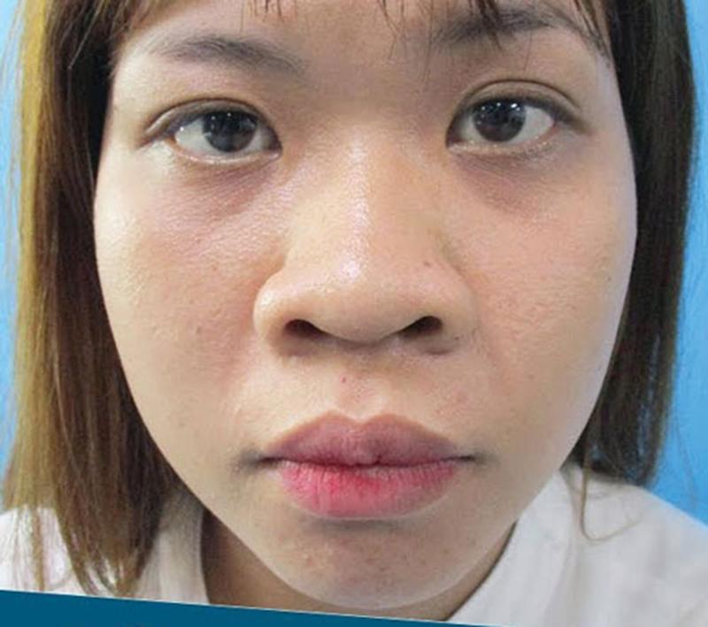 Tình trạng và phương pháp phẫu thuật mũi to hiệu quả