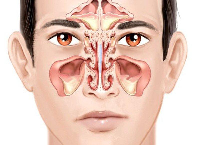 vách ngăn mũi dày