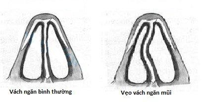 Phẫu thuật mũi lệch vách ngăn gồm những bước nào?