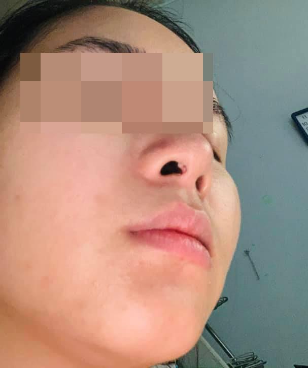 Lộ sụn trong lỗ mũi có nguy hiểm không? Nguyên nhân là gì?