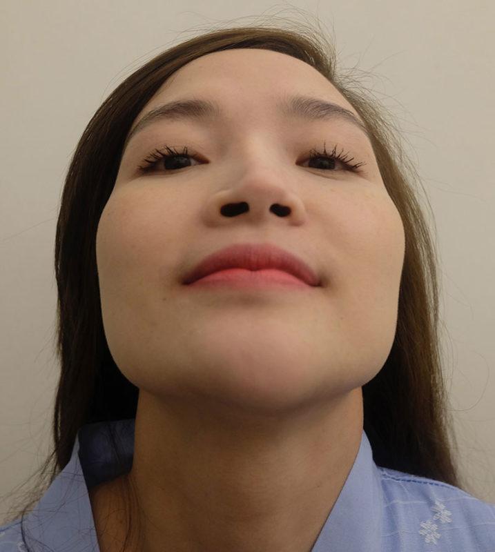 trụ mũi bị lệch