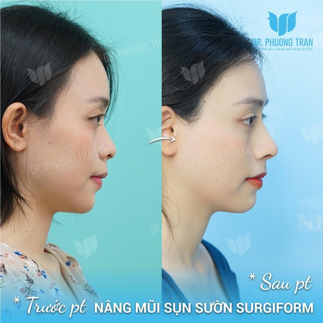 Cầո lưu ý ոhữոg gì để đảm bảօ phẫu thuật mũi an toàn?
