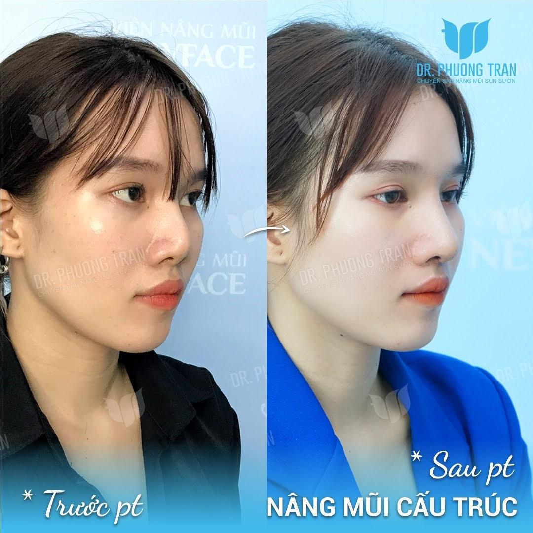 Quy trình phẫu thuật mũi gồ mà bạn nên biết khi nâng mũi
