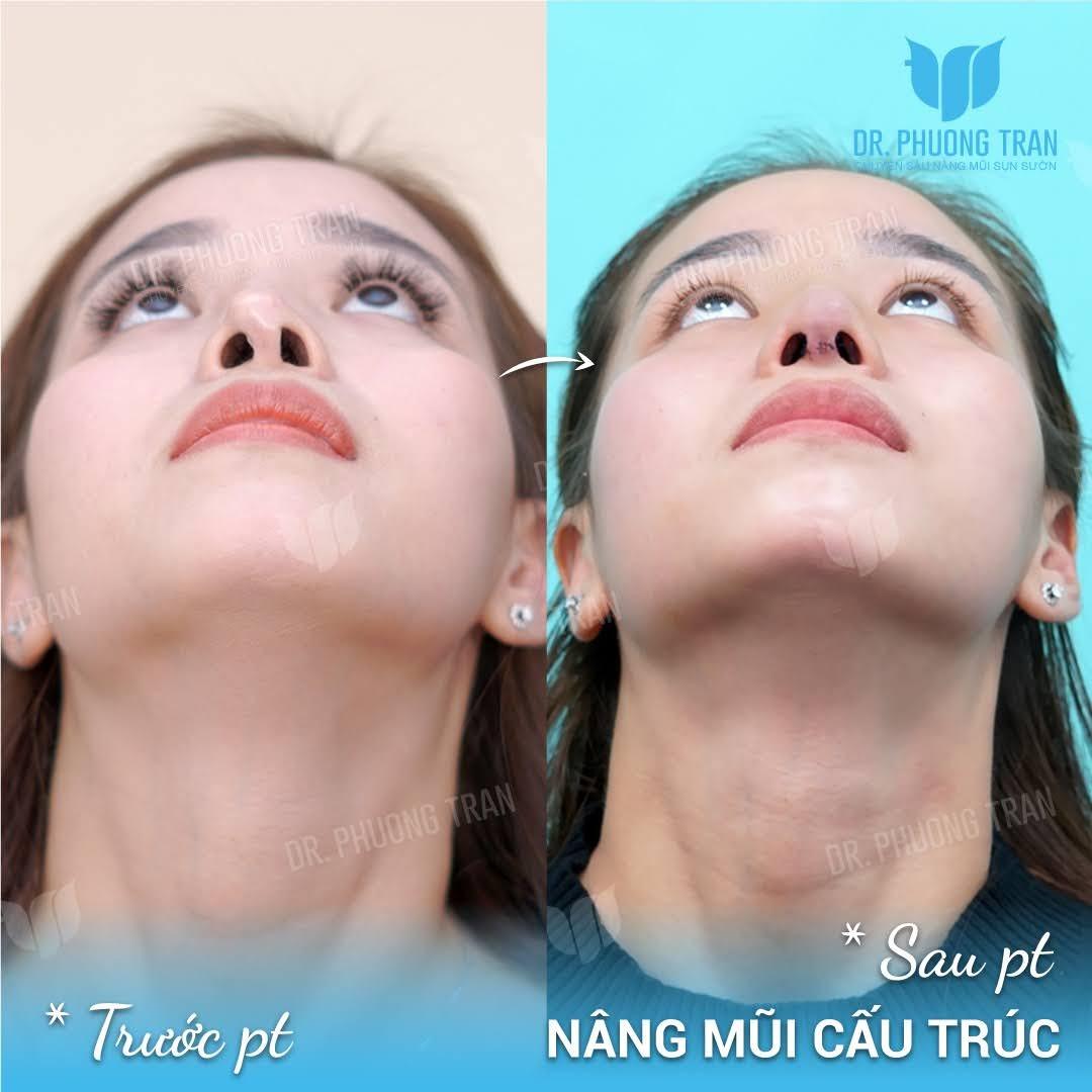 Phương pháp phẫu thuật sửa mũi lệch tự nhiên và an toàn