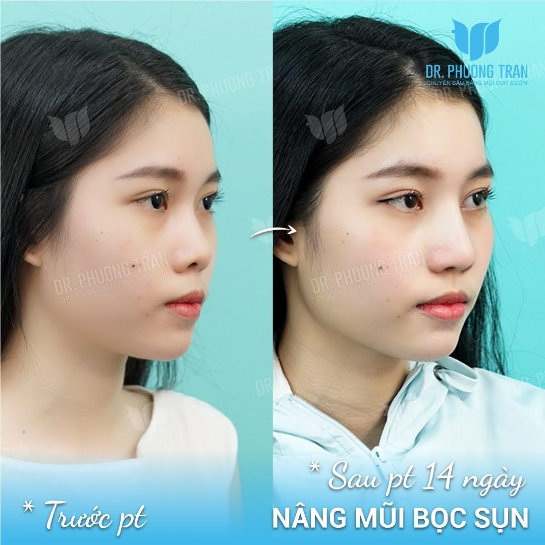 Phẫu thuật mũi bằng sụn tai có ảnh hưởng gì không?