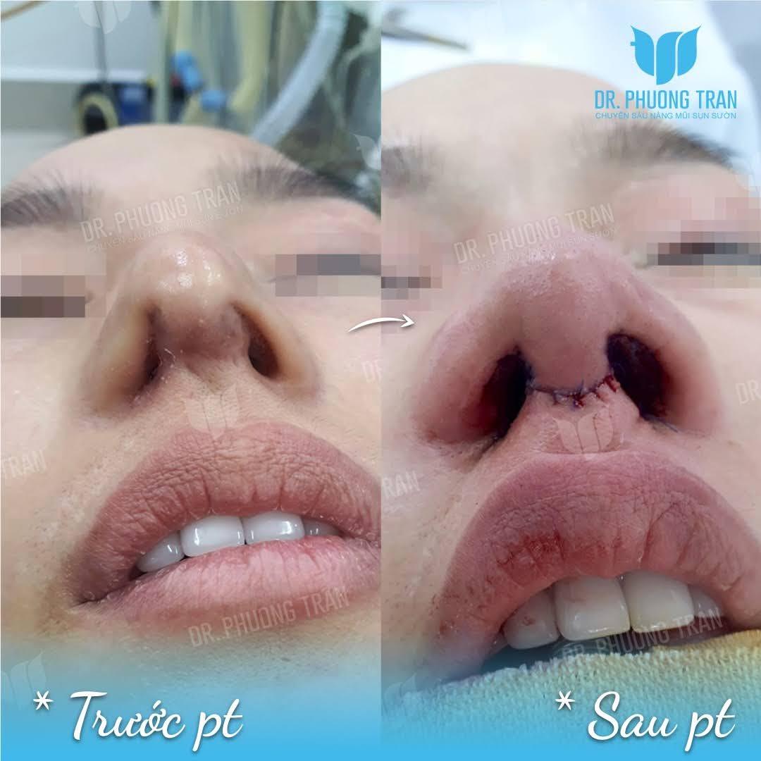 Phẫu thuật đầu mũi: Những thông tin cần lưu ý